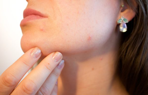 Актуальные вопросы диагностики и лечения инфекционных и паразитарных заболеваний кожи (36 часов)